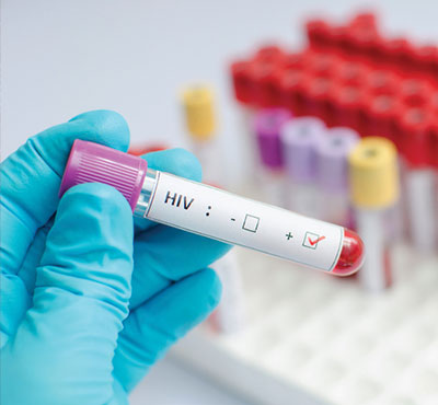 Preliminary Findings from HPTN 078 Indicate High Levels of HIV and Syphilis in MSM and TGW